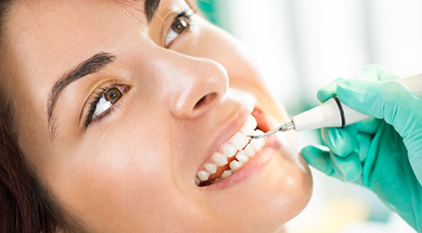 Teeth Cleaning and Consult