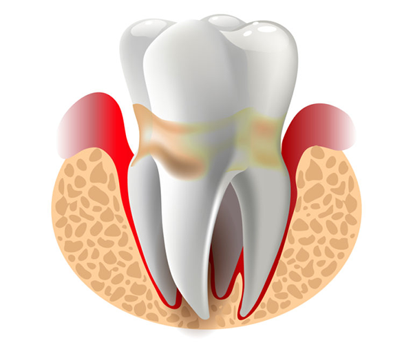 Periodontics Treatment